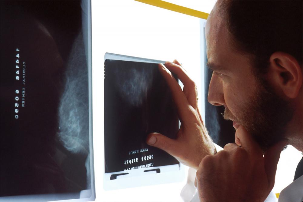 Google: εντοπισμός καρκίνου του προστάτη με τεχνολογία ΑΙ