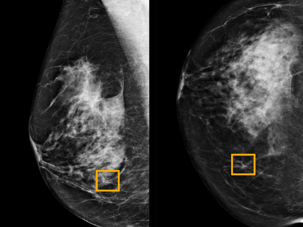 Σύστημα ΑΙ της Google εντοπίζει με ακρίβεια τον καρκίνο του μαστού